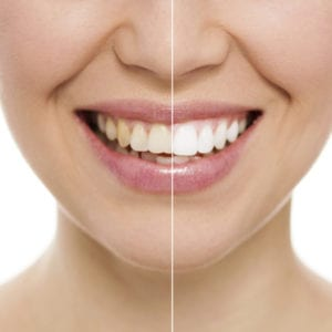 Teeth whitening results Lawson MO